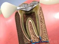 Root Canals in High Point, NC