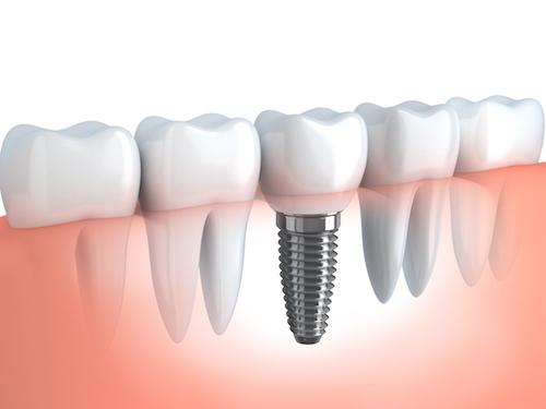 graphic showing a dental implant in high point nc