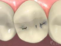 a render of an intra-oral picture | dentist high point nc