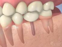 High Point NC Dental Implants