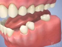 Dental Implants High Point, NC