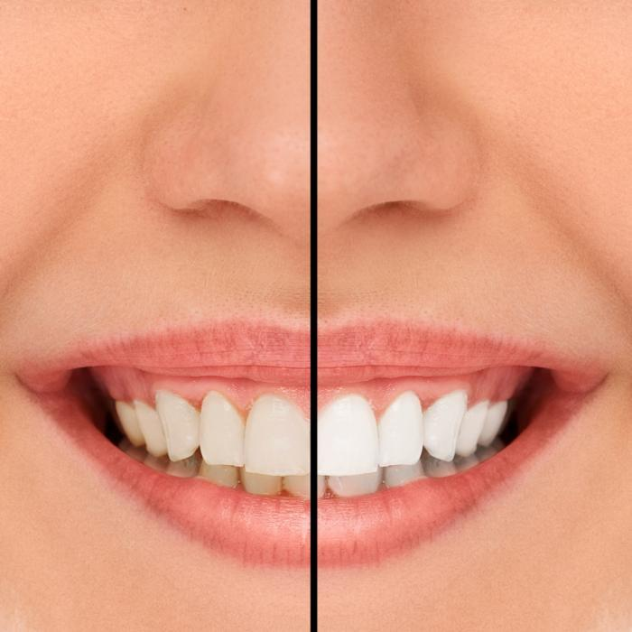 teeth whitening high point nc
