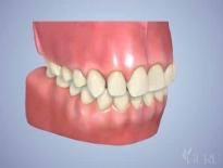model of mouth I full mouth reconstruction in high point