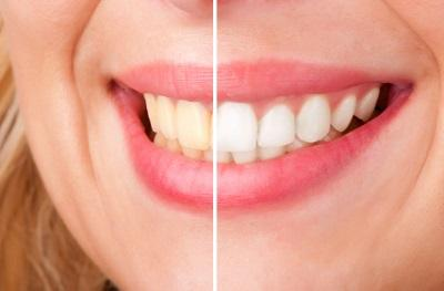 Side by side image before & after cosmetic dentistry l Deep River Family & Cosmetic Dentistry High Point NC