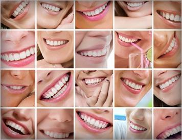 collage of multiple smiling mouths I teeth whitening in high point nc