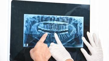 x-ray digital print of full mouth I deep river dentistry in high point, nc