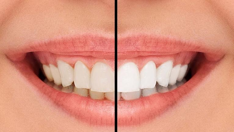 Teeth Whitening High Point Nc Professional Teeth Whitening