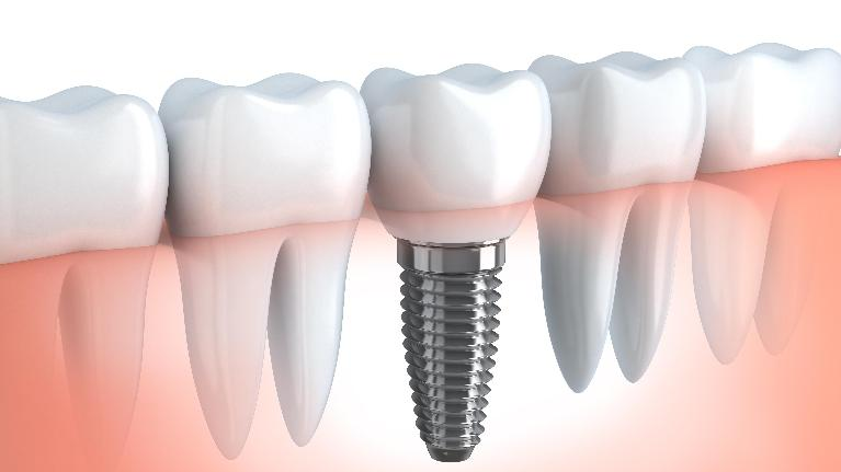 Dental Implants | High Point NC Dentist