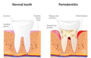gum disease High Point NC
