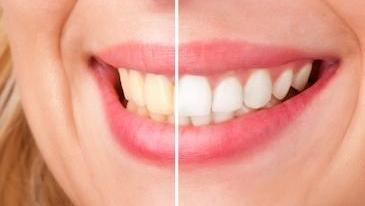 Teeth Whitening | Deep River Family & Cosmetic Dentistry | high Point, NC