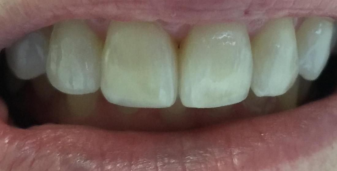 a smile after an invisalign treatment with our high point nc dental office