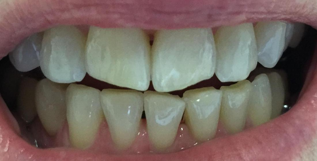 a smile before invisalign at our high point nc dental office